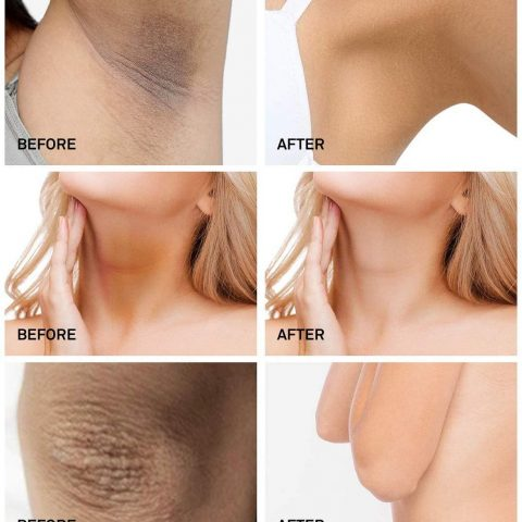 Underarm Whitening Cream,Lightening Cream Effective for Lightening & Brightening Armpit, Knees, Elbows, Sensitive & Private Areas, Whitens, Nourishes, Repairs & Restores Skin
