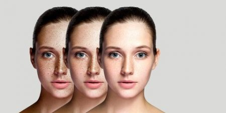 dark spots on face 0923